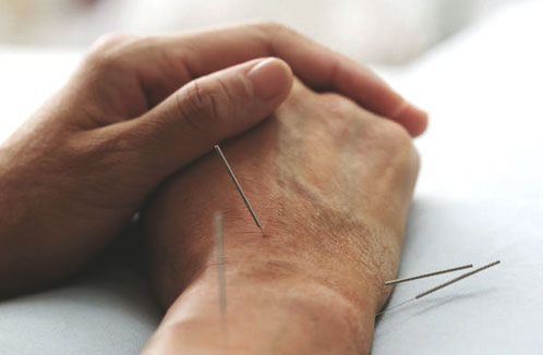 Brisbane Acupuncture Therapy